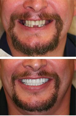 Prieš ir po implantacijos