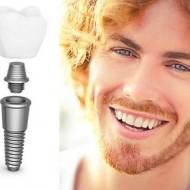 Kas yra dantų implantai