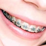 Dantų tiesinimas breketais