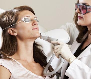 Spuogų šalinimas dermatologijos klinikoje