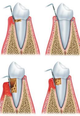 Parodontozė